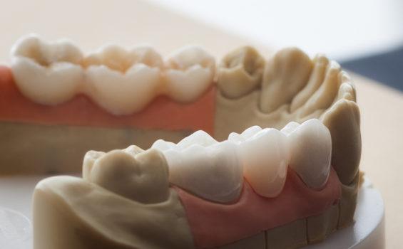 graphenano dental cad cam