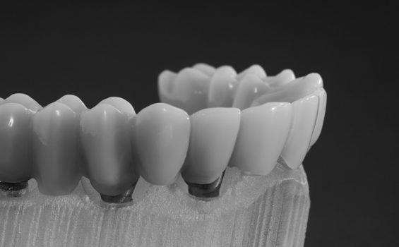 graphenano dental protesis